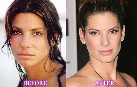 Want To Have The Incredible Appearance? See The Sandra Bullock Plastic Surgery
