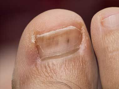 You notice: Tiny, red lines under the toenail A heart infection. Red streaks underneath the toenails or fingernails could be broken blood vessels known as splinter hemorrhages.