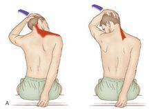 Stretches: Two stretches for the extensor muscles of the posterior neck.  — American Massage Therapy Association