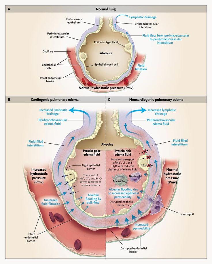 Pulmonary edema - Cardiogenic VS Noncardiogenic