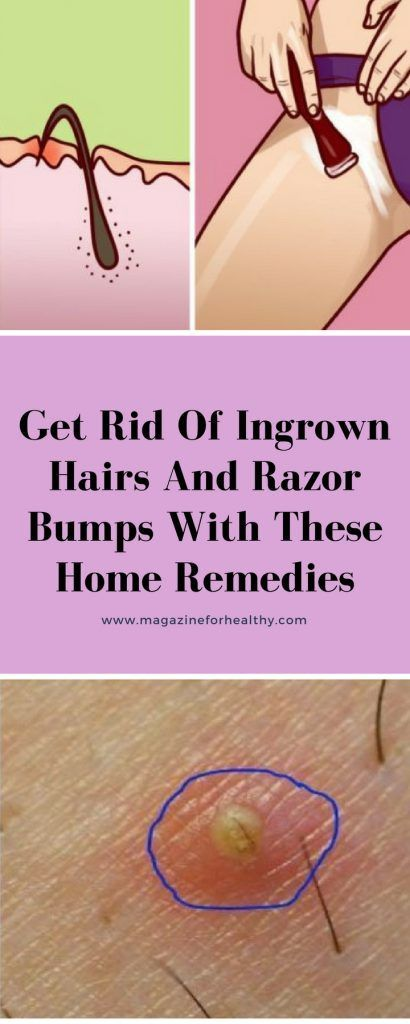 Get Rid Of Ingrown Hairs And Razor Bumps With These Home Remedies..