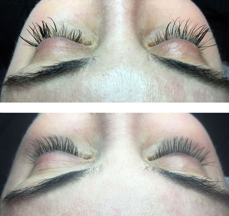 Lashes before and after! Bad damaged lashed to perfect lashes by Michelle