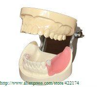 Бесплатная доставка имплантат практика модель и кариес зубы стоматолог анатомический анатомия модель odontologia