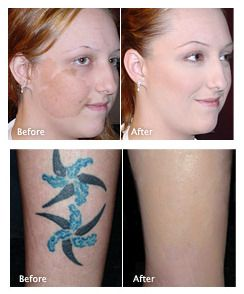 16 best Cover Up Make Up images on Pinterest