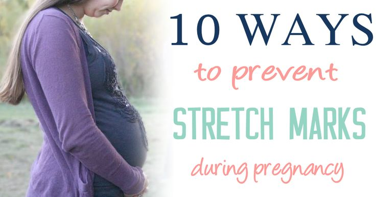 10 Easy Ways to Prevent Stretch Marks During Pregnancy ...