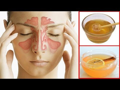 ★How To Get Rid of a Sinus Headache Fast. ★Sinus Pressure Relief. ★ What Is Sinus Infection? ★ What Are The Sinus Symptoms? ★ Most Effective Home Remedies for Sinus Pressure Relief.