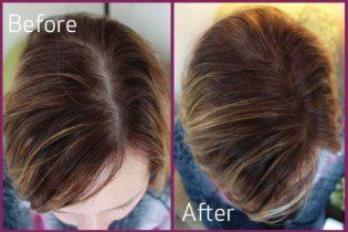 How To Regrow Hair Naturally In 10 Days
