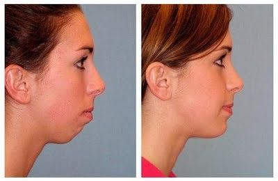 Chin implant young woman - Google Search