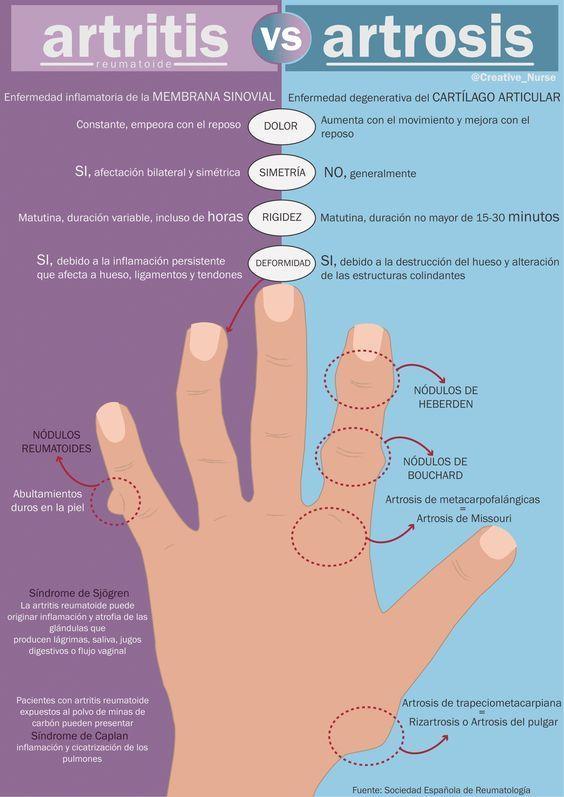 Mi pequeños aportes: Artritis vs artrosis  Aquí te dejo una infografía comparativa entre artritis vs. artrosis #Salud #Infografia