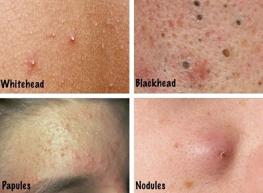 Different Acne Types and How to Identify Them