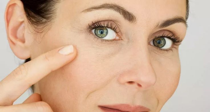 Remedios caseros para quitar las arrugas de forma natural