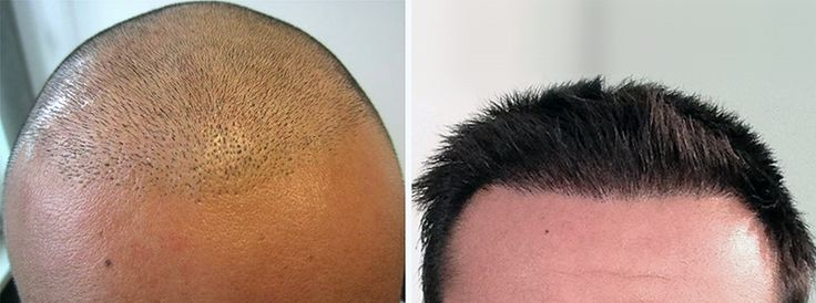 Now you can able to get all details regarding how to get back your confidence with hair transplant explore my data and see the details