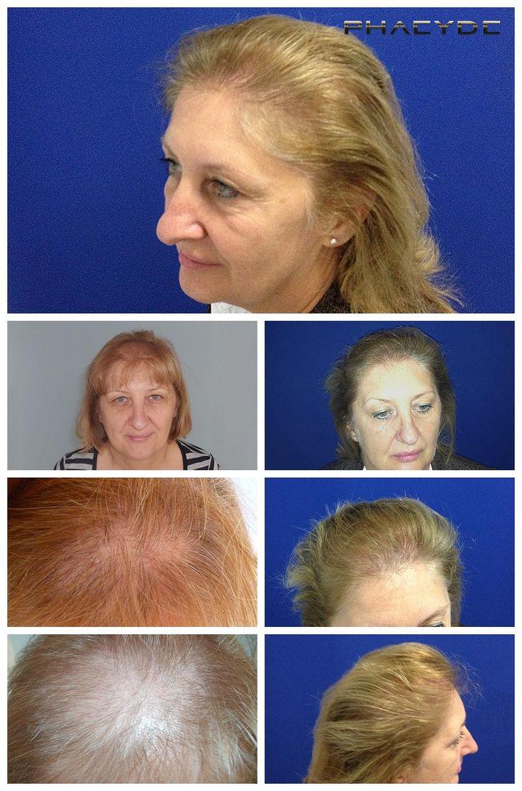 Um caso difícil: translantation de cabelo loiro - PHAEYDE Clínica  Falta de cabelo. Falta de contraste. Um dos mais difíceis casos, porque é difícil de ver, enquanto trabalhava na sua zona de doador. Susan tinha enormes problemas ligados a sua calvície. Ela estava perdendo seu cabelo de forma difusa, em todos os lugares. 1 dia longo tratamento, entre tempo de cabelo challanged nossa equipe suficiente. Foi embora,   http://pt.phaeyde.com/transplante-de-cabelo