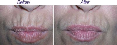 Smoker lines are vertical lines that develop on the skin around the mouth. They frequently develop as a result of years of smoking. Great results are achieved for patients with a few large but not highly etched in wrinkles. For this procedure Botox should be injected in minimal doses (0.5 to 1 Unit per wrinkle) to minimize weakness in this area, as lips have an essential role and critical for facial functions.