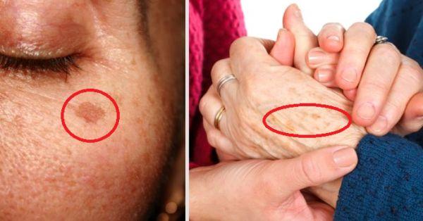 Los puntos de la edad, también conocidos como manchas de sol, manchas de hígado, y lentigines, son decoloraciones inofensivas, planas, amarillas o marrones de la piel que usualmente ocurren en la parte posterior de las manos, el cuello y la cara.
