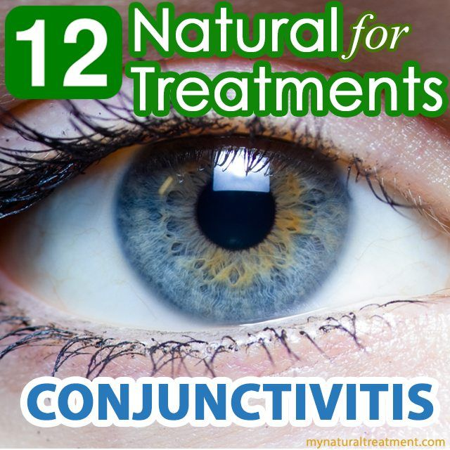 natural treatment for conjunctivitis