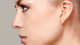 Fraxel Laser Resurfacing, Costs, & Side Effects