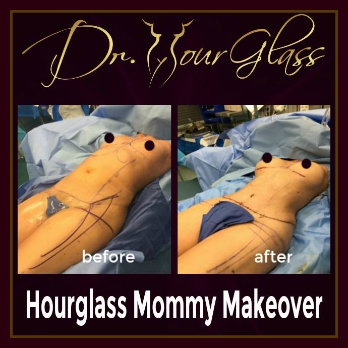 Notice that from the before picture the patient clearly have square shape. She underwent an Hourglass Mommy Makeover combining hourglass tummy tuck and wonder breast augmentation. This procedure transformed her body into a real hourglass figure.