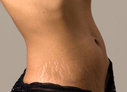 Tippek a Fogyási-, terhességi csíkok természetes eltüntetéséhez
