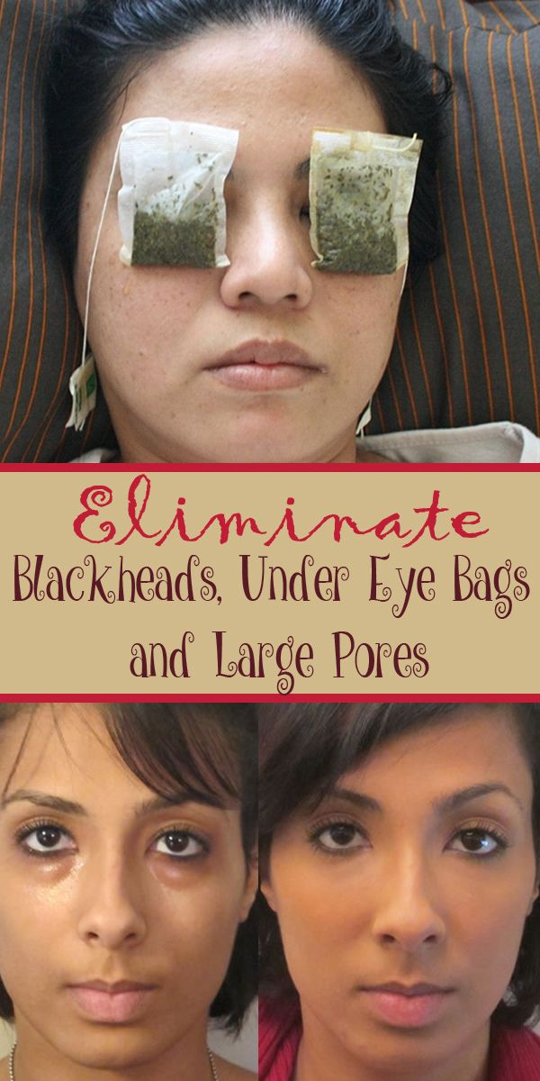 Eliminate Blackheads Under Eye Bags And Large Pores