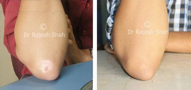 Here we have collection of before after treatment photos of patients treated by