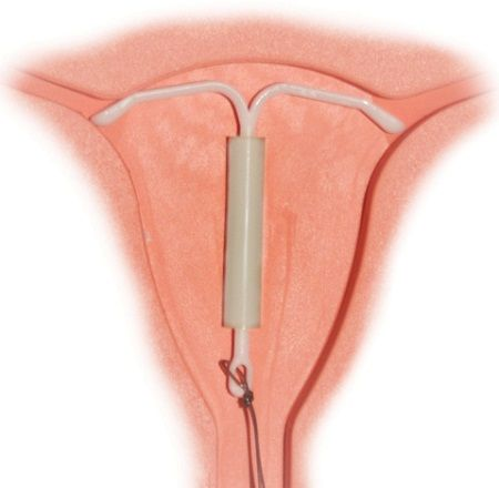Removal of the device should only be performed by a qualified medical practitioner. You should never attempt to remove the IUD you self.