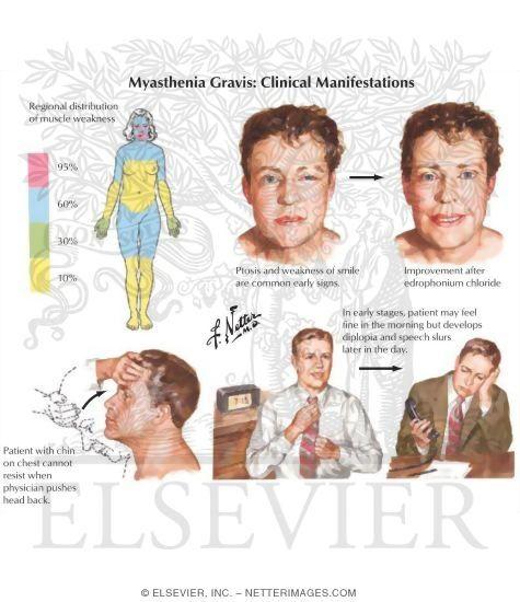 "myasthenia gravis (""muscle weakness""): autoimmune motor disease (not neuro); treated with anticholinergics (prostigmine bromide) & steroids. KEY WORDS: diplopia, ptosis"