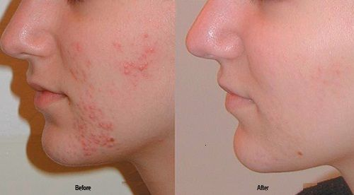 Best Medicine for Treatments of Acne