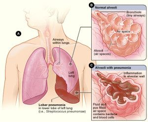 Bacterial pneumonia is an infection of the lungs usually caused by bacteria. People with bacterial pneumonia will usually complain of mucus production, coughing, a steady shortness breath, and/or chest pain. Bacteria are kept from infecting a person's lungs because the immune system fights it off from the lungs. In cases of bacterial pneumonia, bacteria can …