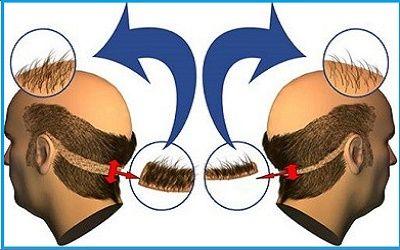 Neste artigo explico em detalhes sobre o implante de cabelo. Vou te mostrar todos os benefícios, riscos e cuidados ao tomar antes de um implante de cabelo.