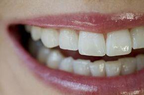 Cómo eliminar el sarro dental en casa | eHow en Español