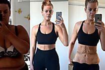 Sobra de pele e flacidez viram polêmica após foto de mulher que emagreceu 85 kg