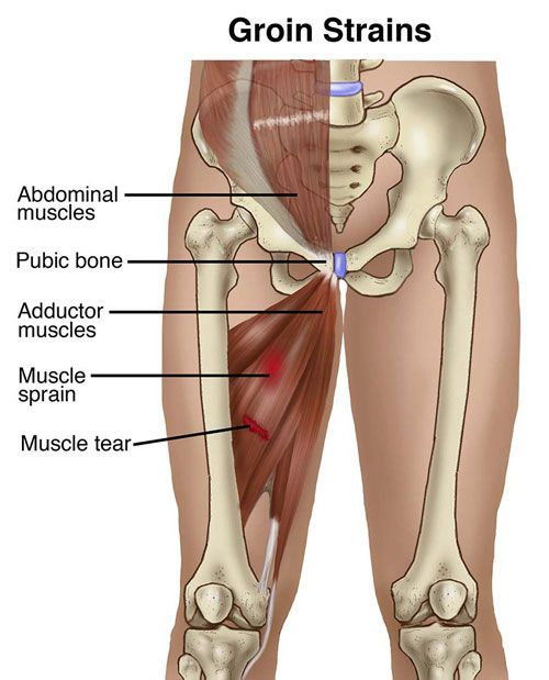 A groin strain is an injury to the groin area, the area of the body where the abdomen meets the leg and the inner thigh muscles attach to the pubic bone. Although more common in athletes than non-athletes, groin strains can occur during any type of forceful movement of the leg, such as jumping, kicking the leg up, or changing directions while running. Groin strains account for 10% of all hockey injuries and 5% of all soccer injuries.