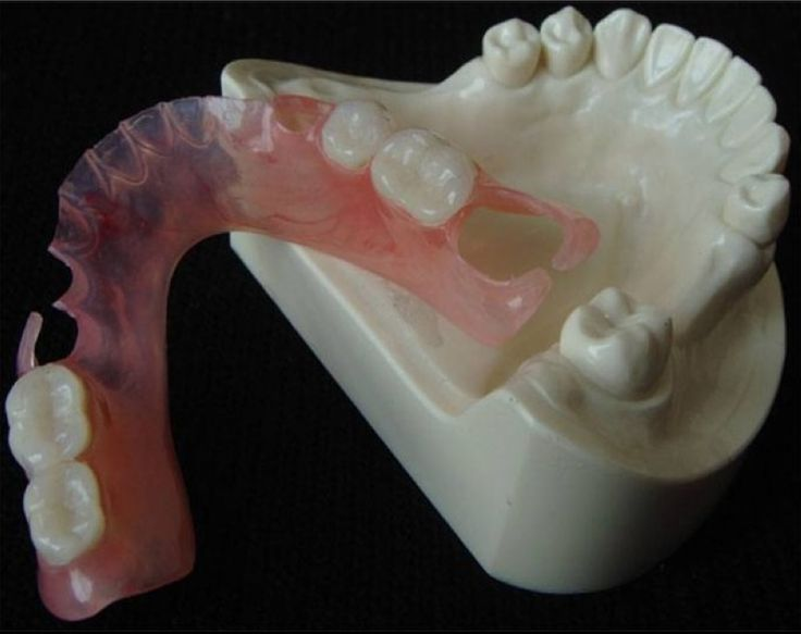 50 Best Dentures Flexible Partials Images On Pinterest