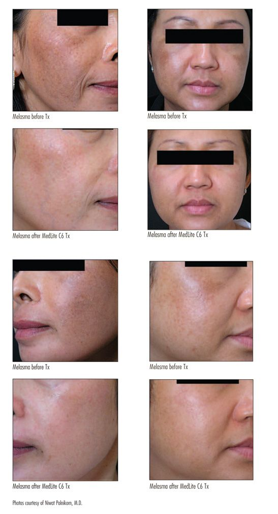 Image result for Best Treatment For Melasma, Clarity at Last