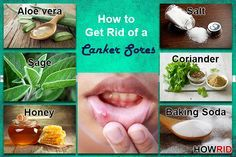 How to get rid of a canker sores? This article is about how to get rid of a canker sores. Canker sores are among the most common mouth problems affecting more than 20 per cent of population. Canker sores, also known as aphthous ulcers and aphthous stomatitis, are painful blisters that get developed inside the mouth. They can... #AvoidCankerSores, #CankerSores, #CureCankerSores, #GetRidOfACankerSores, #GetRidOfCankerSores, #GetRidOfCankerSoresFastAndNaturally, #HealCankerSor