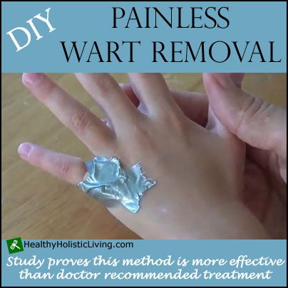 Although the idea of a wart is disgusting to some they are quite common and easy to remove. Try this DIY wart removal technique