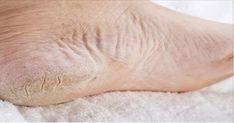 El catálogo de remedios caseros para los pies nos ofrece una amplia variedad de preparados para combatir los hongos, remover las células muertas y evitar otros molestos problemas que los hacen lucir mal. Entre estos nos encontramos con un tratamiento de aspirinas y jugo de limón, conocido en muchos lugares por su capacidad para exfoliar, limpiar y suavizar hasta las zonas más duras de la piel. Las aspirinas son un medicamento analgésico y anticoagulante que suele emplearse para aliviar los…