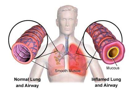 Essential Oils for Acute Bronchitis
