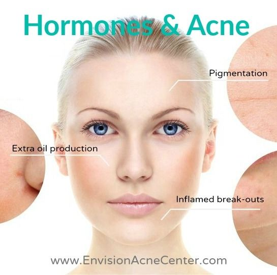 Best Natural Treatment For Middle Aged Acne