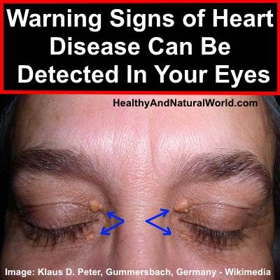 A specific marking in the skin around the eyes can be a sign of heart disease, according to scientists. However most people ignore it or even remove it.
