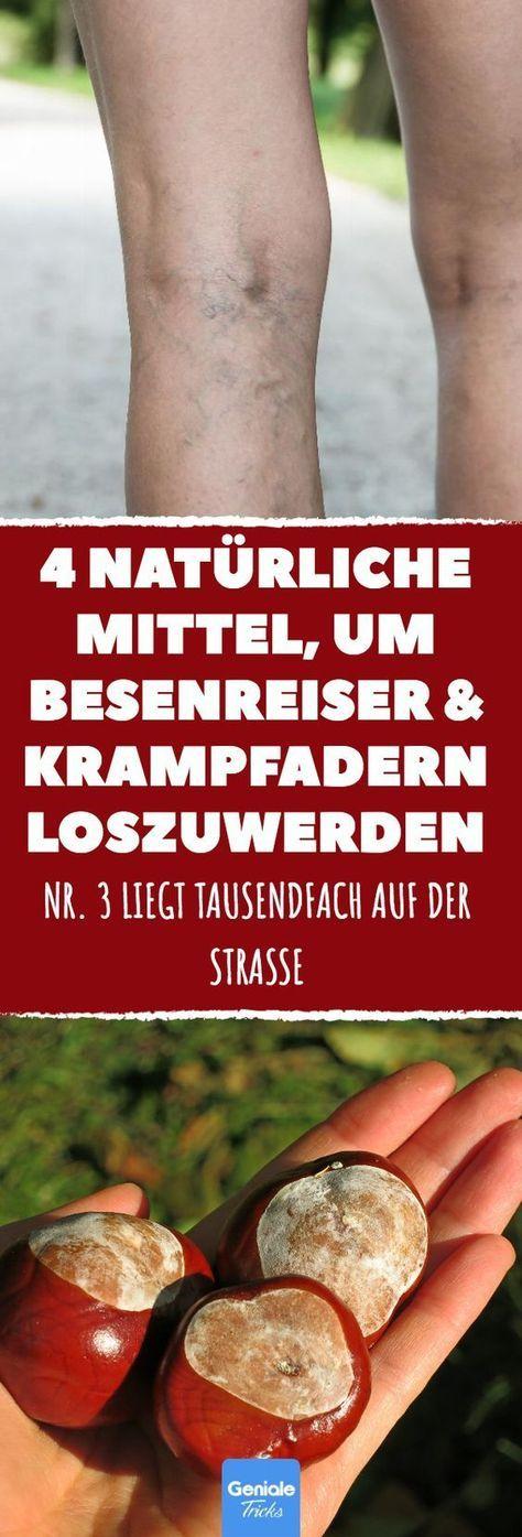 4 natürliche Wege, Besenreiser und Krampfadern loszuwerden. #krampfadern #besen…