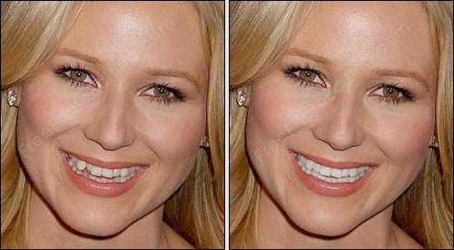 All Types Of Teeth Correction Can Be Done With Photo