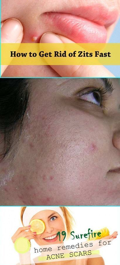 Acne and Acne Remedies. All-natural ways to elimin…