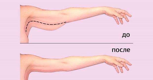 Убираем лишний жир с рук: 3 способа которые работают. Возьму себе на заметку. | Дни.Жизнь.Суть
