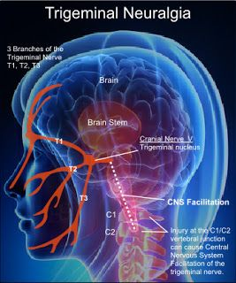 Trigeminal neuralgia (TN) additionally known as tic douloureux could be a condition that's characterized by intermittent shooting pain within the face. TN affects the fifth cranial nerve one in all the biggest nerves within the head. The trigeminal nerve sends impulses of bit pain pressure and temperature to the brain from the face jaw gums forehead and round the eyes.Reference...