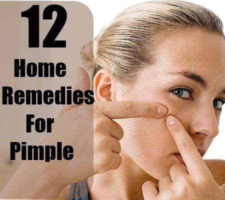 12 Effective Pimple Home Remedies