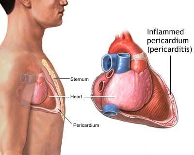 Pericarditis – Causes, Symptoms, Diagnosis, Treatment and Ongoing care - Inflammatory process of the pericardium, with or without associated pericardial effusion; a broad spectrum of etiologies with most common causes being idiopathic or viral  Read more: http://health.tipsdiscover.com/pericarditis-causes-symptoms-diagnosis-treatment-ongoing-care/#ixzz2lUha8xNM