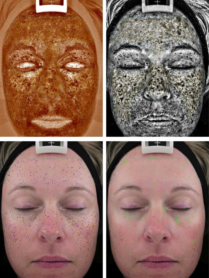 Skin analysis facial, jakarta sex pic