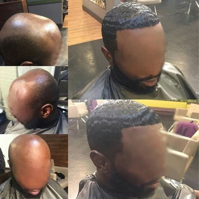 Pretty Girls Link Up Units Are Not Just For Women Honey There Are Ple Alopecia Hairstyles Waves Hairstyle Men Hair Loss Women